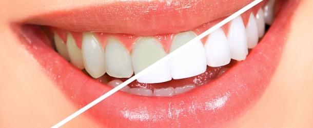 Czy wybielanie zębów ma sens?