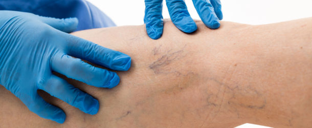 Masz objawy żylaków kończyn dolnych – nie zwlekaj z zleczeniem