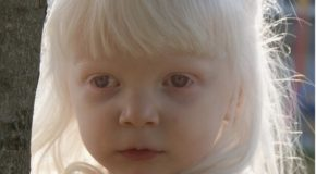 Albinizm i jego skutki